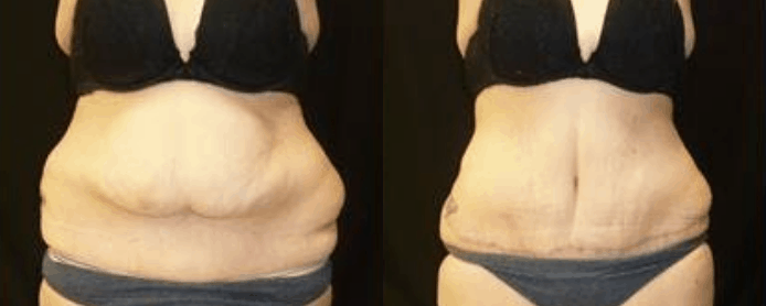 ABDOMINOPLASTY  - BEFORE AND AFTER