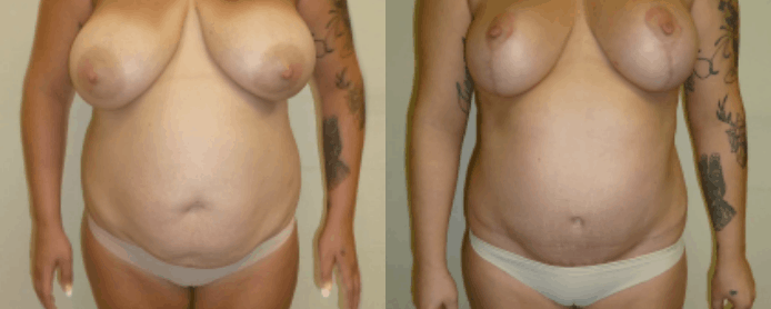 ABDOMINOPLASTY PAGE - TUMMY TUCK BEFORE AND AFTER2