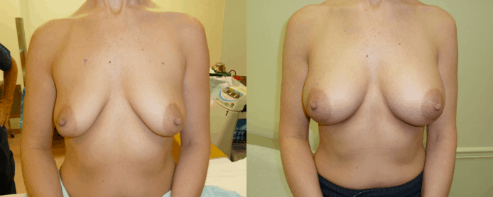 BREAST AUGMENTATION PAGE - before and after gallery1