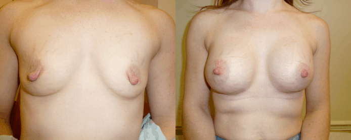 BREAST AUGMENTATION PAGE - before and after gallery2