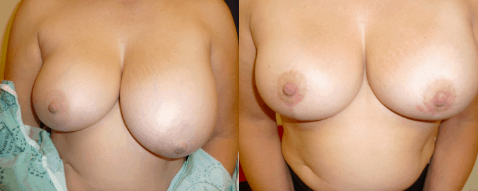 BREAST AUGMENTATION PAGE - before and after gallery3