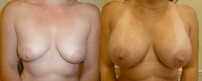 BREAST AUGMENTATION PAGE - before and after gallery4