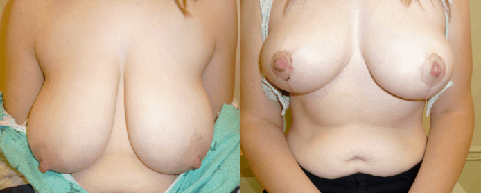 BREAST REDUCTION PAGE - before and after gallery1