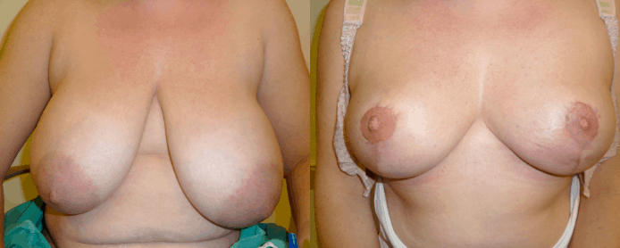 BREAST REDUCTION PAGE - before and after gallery2