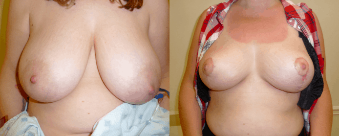 BREAST REDUCTION PAGE - before and after gallery3
