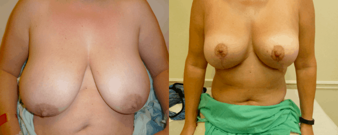 BREAST REDUCTION PAGE - before and after gallery4
