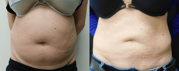 LIPOSUCTION PAGE -BEFORE AND AFTER