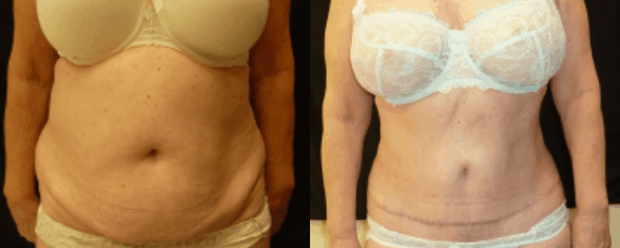 MINI ABDOMINOPLASTY PAGE -BEFORE AND AFTER