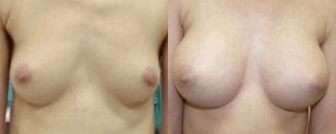 BREAST AUGMENTATION - BEFORE AND AFTER10