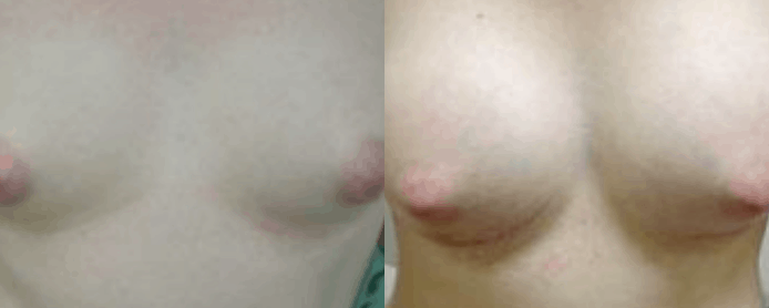 BREAST AUGMENTATION - BEFORE AND AFTER