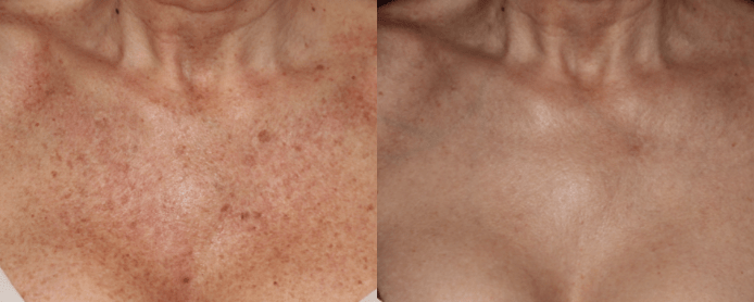 LASER BBL - BEFORE AND AFTER