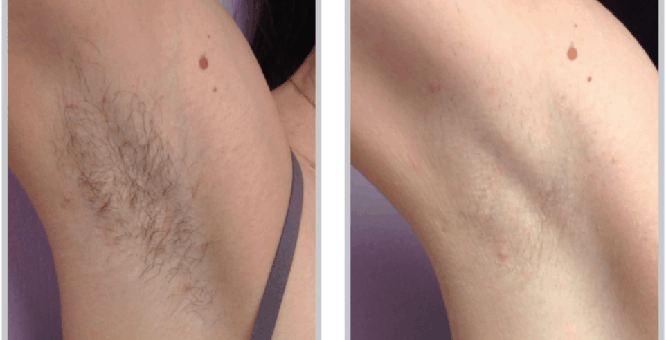 LASER - BBL hair removal PHOTO
